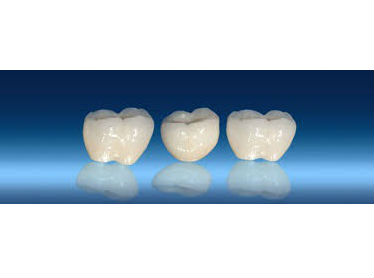 Zirconia crowns and bridges